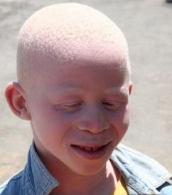 Albino boy in Africa